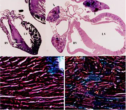 Characteristics of peripartum cardiomyopathy in Gαq-overexpressing mice. (Top) Gross morphology (4×) of peripartum nontransgenic (Left) and Gαq-overexpressing (Right) mouse hearts showing cardiomyopathic dilatation of cardiac chambers (LV, left ventricle; RV, right ventricle) with mural thrombi in atria (arrows). (Bottom) Trichrome stain (400×) of hearts depicted inb shows interstitial fibrosis and myocyte replacement (blue-stained cells), without inflammation in transgenic heart (Right).