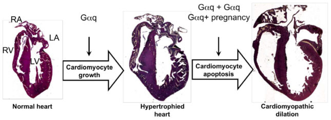 Gq mouse hearts showing phenotypes of cardiac hypertrophy and dilated cardiomyopathy.