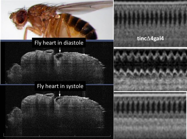 Optical coherence tomography imaging of functioning heart tubes in intact, unanesthetized fruit flies using a Michelson Diagnostics 1300 nm multi-beam EX1301 OCT microscope (greater than 10 um resolution). Two-dimensional images (left panels) are post-processed to achieve b-mode tracings analogous to mouse/human m-mode echocardiography studies (right panels). Top right tracing is normal control (tincD4gal4) heart. Middle right tracing is dilated hypocontractile cardiomyopathic heart that was rescued genetically (bottom tracing).