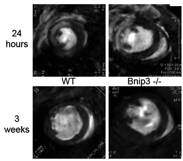 BNip3 gene knockout mice are protected from heart failure after myocardial infarction. These are cine magnetic resonance images (cMRI) of the same normal (WT, wild-type, left) and BNip3 gene knockout (Bnip3-/-, right) mouse hearts one day (top) and 3 weeks (bottom) after myocardial infarction. The infarctions are visualized in 24 hour studies by gadolinium staining that appears white (areas between 9 and 12 o'clock) within the dark myocardium. Blood within the left ventricles appears bright white in these images and swirls as it is ejected from the heart. After three weeks the infarct size (area of the heart that doesn't move) is smaller in BNip3 knockout hearts.